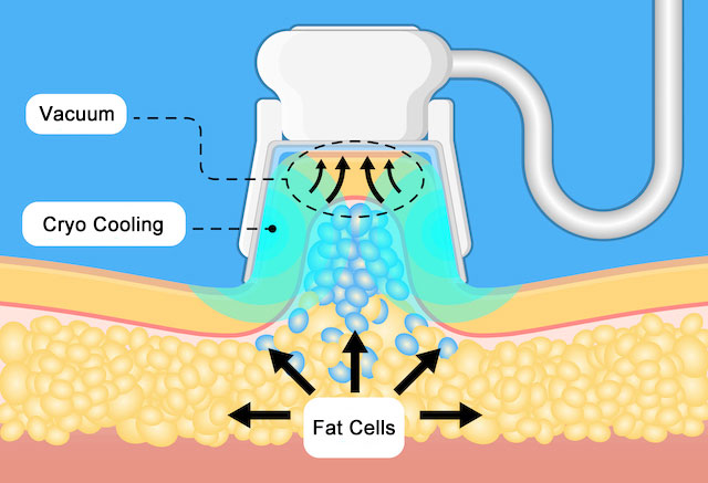 cryolipolysis fat freezing