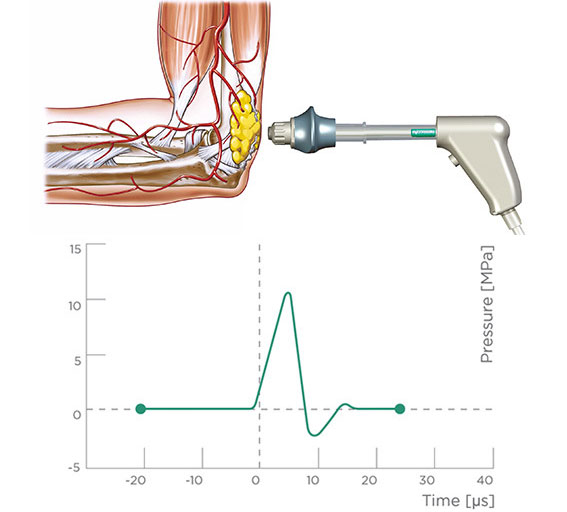 eswt extracorporeal shock wave therapy chart