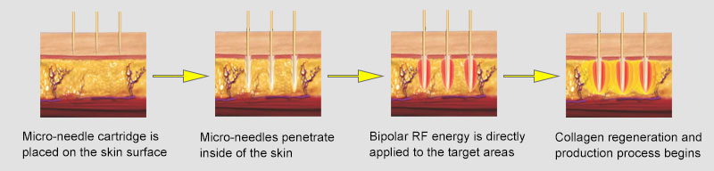 how fractional rf micro-needling works